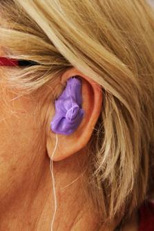 Etape 4 : La prise d'emprunte de l'oreille